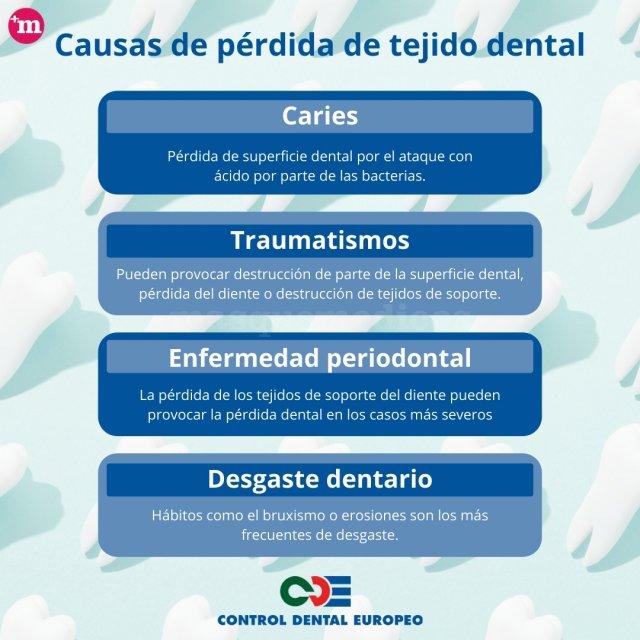 Causas de pérdida de tejido dental - Control Dental Europeo