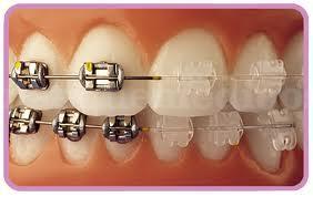 Ortodoncia a la alcance de todos - Dentivital Confort