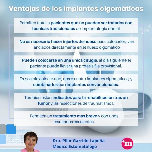 Ventajas de los implantes cigomáticos - Doctora Pilar Garrido Lapeña