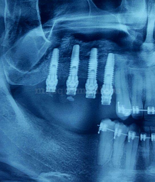 - Dr. Robledo Torres. Clínica Dental