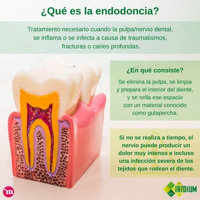 ¿Qué es la endodoncia? - Montserrat Calzado Luján