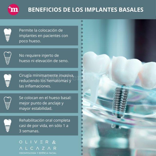 Beneficios de los implantes basales - Oliver & Alcazar - Oliver & Alcázar
