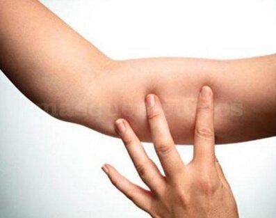 Implante Hormonal Subcutaneo - Centro Clínico Betanzos 60