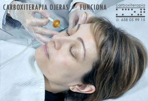 Carboxiterapia Ojeras Funciona Madrid - María Ángeles Marín Oñate