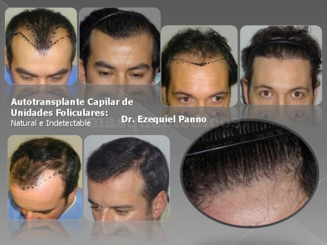 Autotransplante capilar de unidades foliculares - Dr. Ezequiel Panno