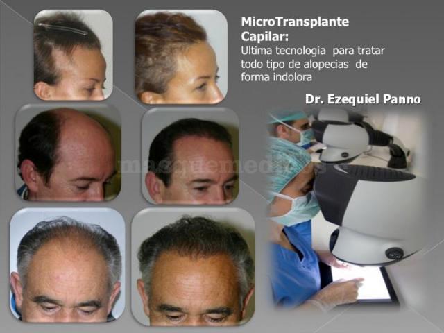 Microtransplante capilar - Dr. Ezequiel Panno