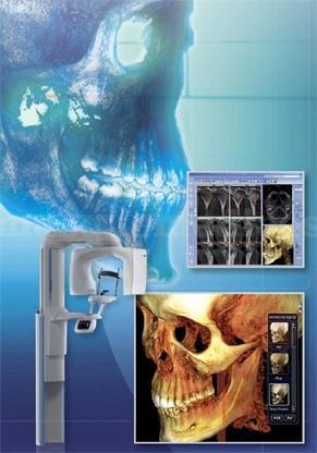 Radiología digital 3D - Instituto Bocca