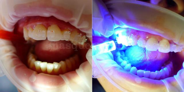 Brackets estéticos - Clínica dental Dra. León