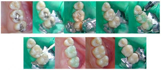 Cambio de obturaciones de amalgama - Clínica dental Dra. León
