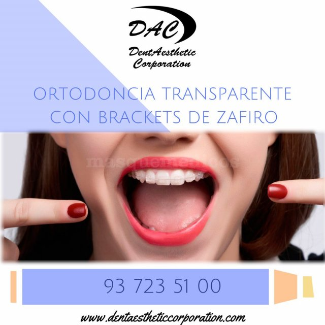 Ortodoncia transparente en Sabadell. Dentaesthetic Corporation. - Dentaesthetic Corporation