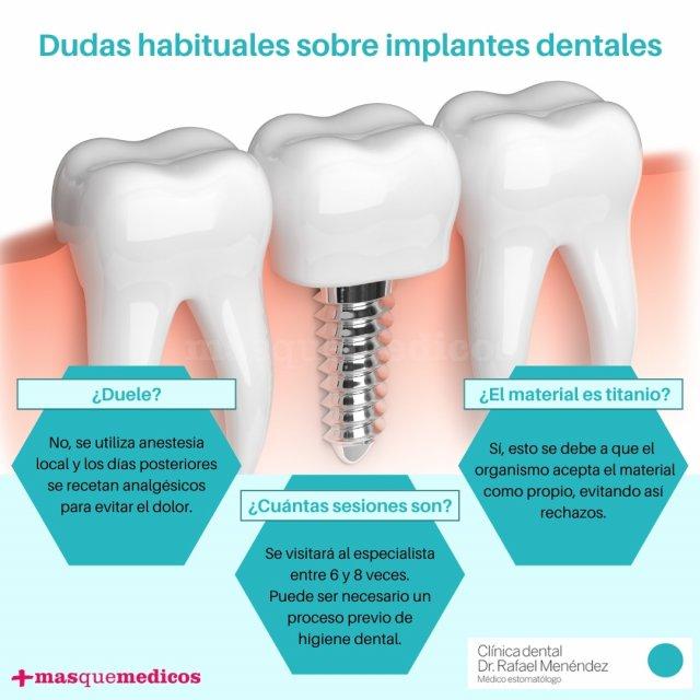 Dudas sobre implantes dentales - Doctor Rafael Menéndez García