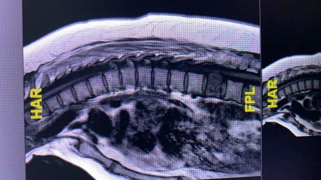 Tumor de Columna - Sergio Castillo Rivera