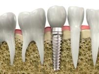 Implantes dentales - Dr. Eduardo González Cardero