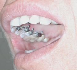 Ortodoncia Lingual INCOGNITO - Ortodoncia Sevilla