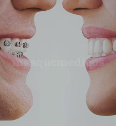 Ortodoncia Invisible INVISALIGN - Ortodoncia Sevilla
