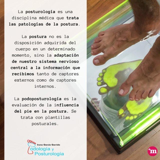 Podoposturología - Irene García Garrido