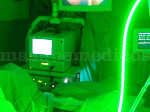 Fotovaporización fotoselectiva de Próstata o Laser Verde - Instituto Urológico Doctor Pena