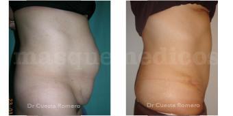 Abdominoplastia antes y después - Doctor Carlos Cuesta Romero