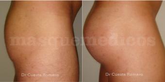 Glúteoplastia antes y después - Doctor Carlos Cuesta Romero