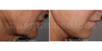Lifting facial antes y después - Doctor Carlos Cuesta Romero