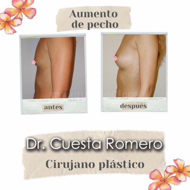 Aumento de pecho - Doctor Carlos Cuesta Romero