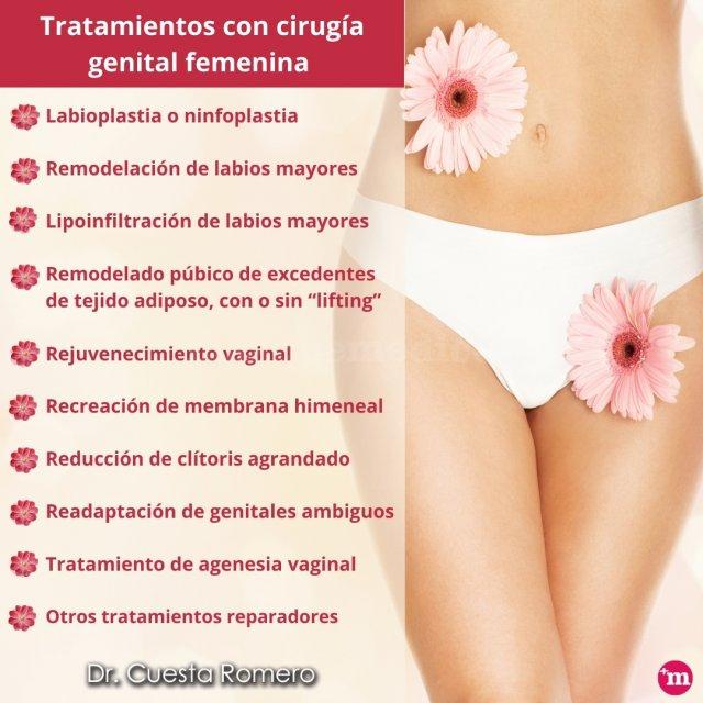 Tratamientos con cirugía genital femenina - Doctor Carlos Cuesta Romero