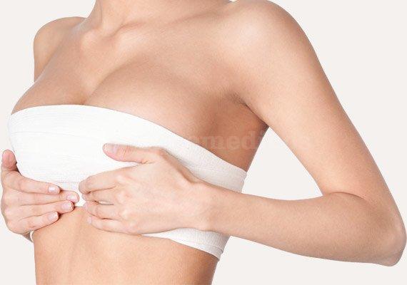 Mastopexia: Elevación de pecho con o sin prótesis Dr. Julio Puig - Dr. Julio Puig