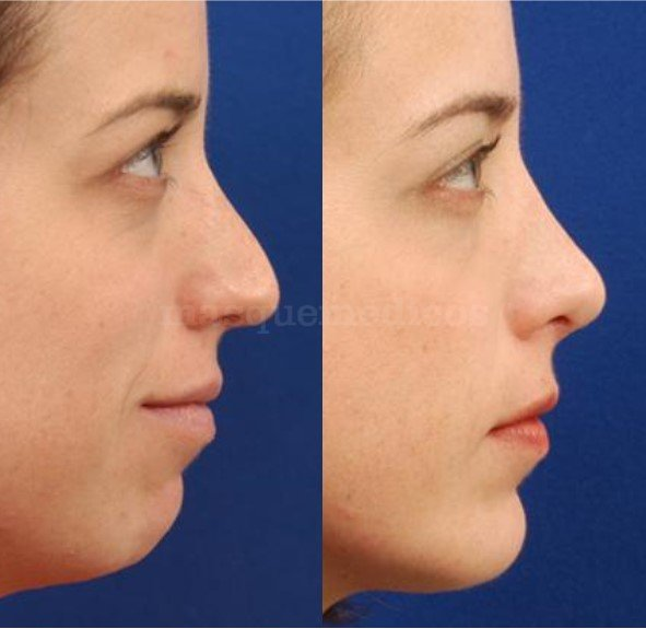 Perfiloplastia: nariz y mentón - Doctor Mira
