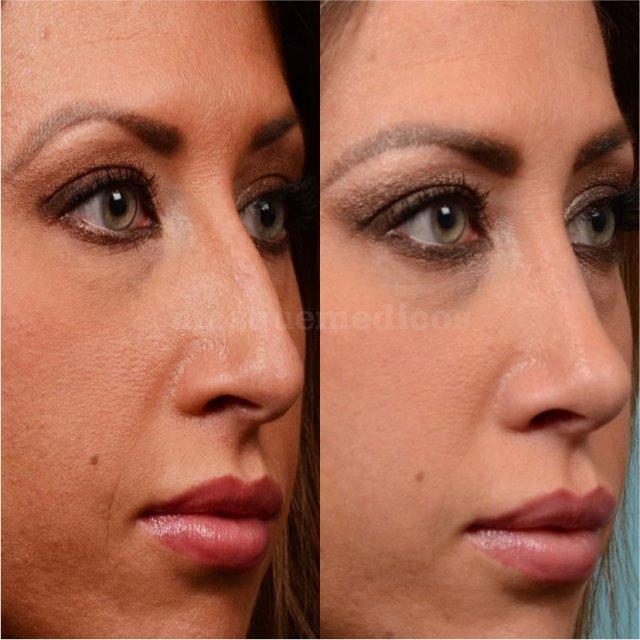 Rinoplastia femenina - Doctor Mira