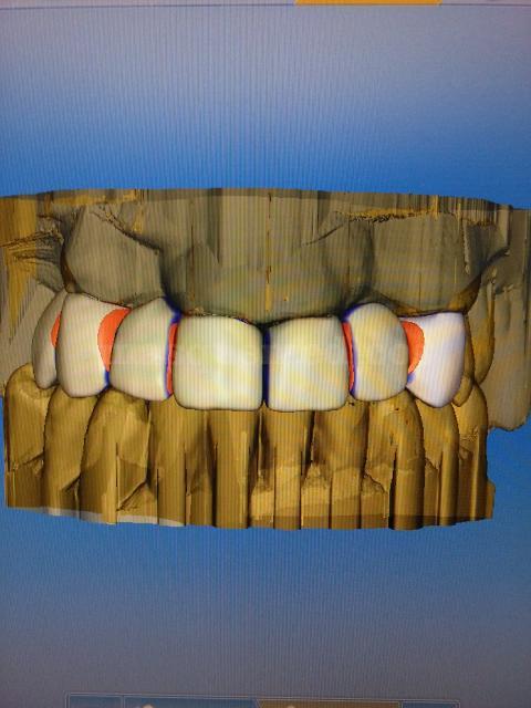 ·3D dental - Clínica Cots