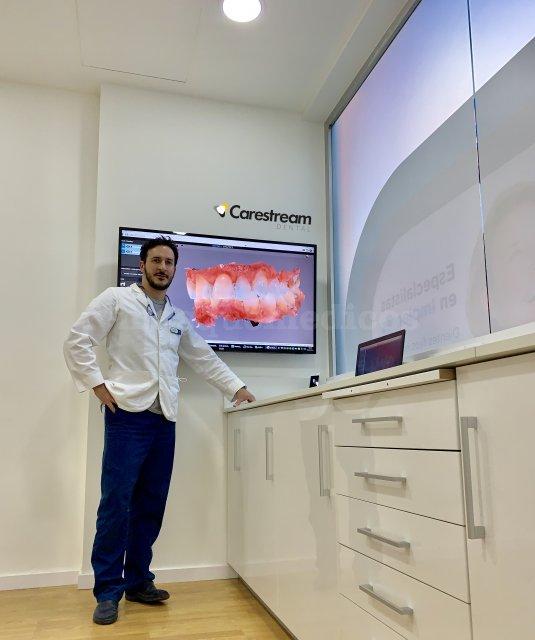 Escaner Intraoral Carestream CS3600 - Clínica Dental Freitas