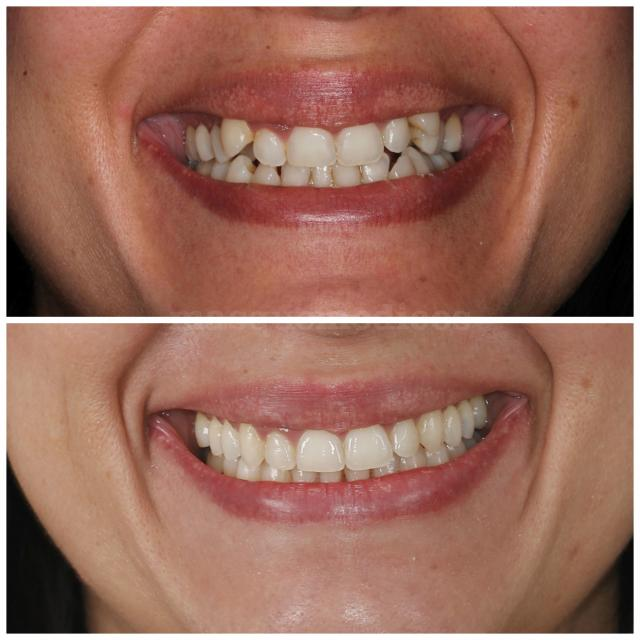 Antes y después chica joven - Clínica Dental Peydro Herrero