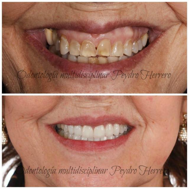 Rehabilitación oral en paciente de tercera edad - Clínica Dental Peydro Herrero