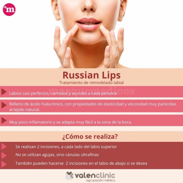Russian Lips - Valenclinic - Valenclinic Agrupación Médica