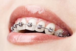 Sistema Damon - Clínica Dental JLC - Servicios Dentales Exclusivos