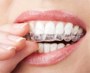 Ortodoncia invisible - Clínica Dental JLC - Servicios Dentales Exclusivos