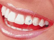 piercing dental