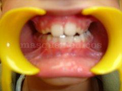 Maloclusión con desviación de la línea media en dentición mixta - Clínica de Odontología Natural Dra. León