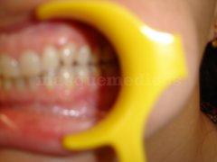 Paciente con Disfunción de la ATM , Clase II división 2 de Ortodoncia - Clínica de Odontología Natural Dra. León