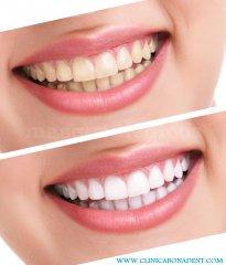 Clínica Dental Bonadent