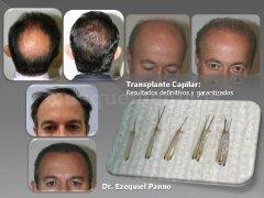 Transplantes capilares - Dr. Ezequiel Panno