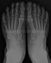 Rayos X - Escanografia Neurologica Ltda