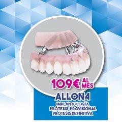 Santident Clínica Dental Picanya