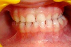 Corrección de una mordida cruzada posterior - Clínica dental Dra. León
