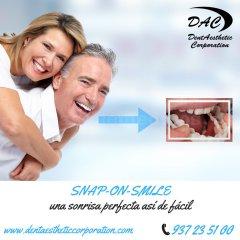 Snap-on-Smile. Diseño de sonrisa en Sabadell. Dentaesthetic Corporation - Dentaesthetic Corporation