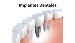 Implantes dentales en Santiago de Compostela - Isabel Campoy de la Torre