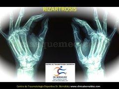 Especialistas en Cirugia de Mano y Muñeca. Clinica Bernáldez. Centro de Traumatología Deportiva, Spo - Clinica Bernáldez
