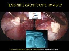 Especialistas en Cirugia de Hombro. Clinica Bernáldez. Centro de Traumatología Deportiva, Sport Medi - Clinica Bernáldez