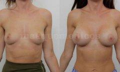 Aumento de pecho - Doctor Mira