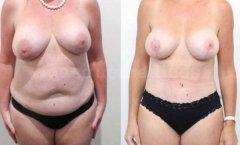 Elevación de senos caidos en Valencia Dr.Mira - Doctor Mira